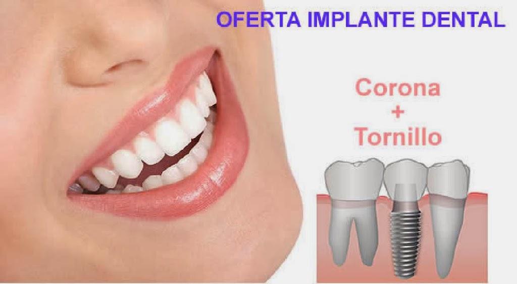 1320405561Oferta-Implante-dental