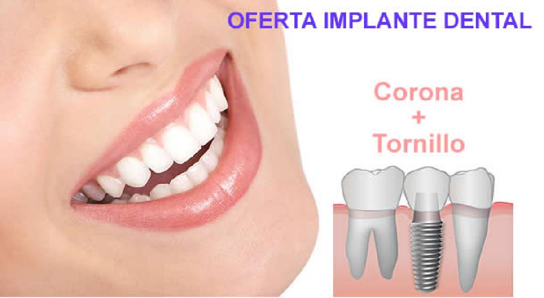 1320405561Oferta-Implante-dental
